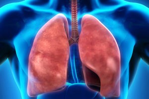 Pulmonary Embolism is The Leading Cause of Preventable Deaths in Patients Hospitalized for Surgical Procedures