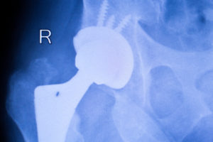 Stryker Issues Voluntary Recall Due To Defective Parts In Metal Hip Implant Devices