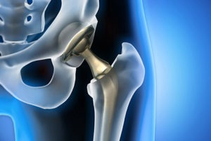 The First BHR Hip Resurfacing Case Is Scheduled for Trial